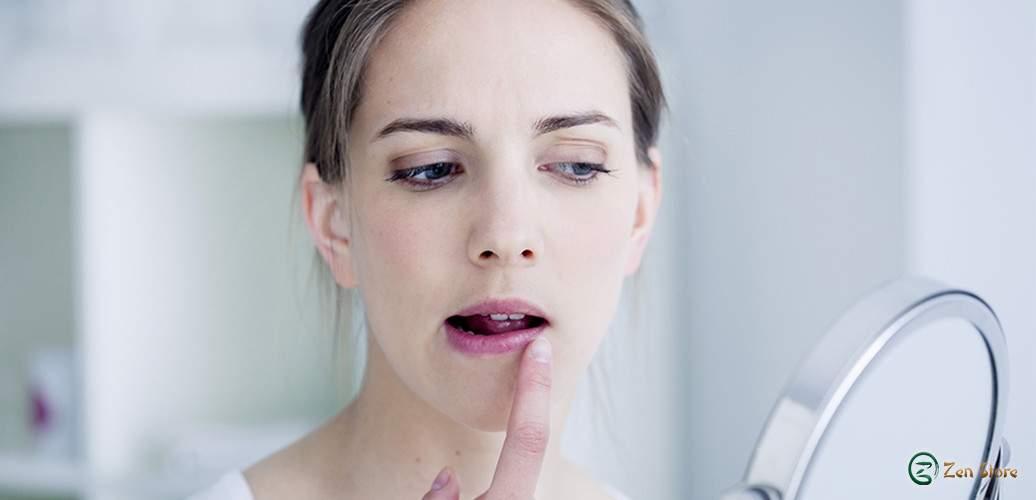 Labbra secche e screpolate: rimedi naturali per proteggerle dal freddo